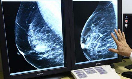 Aumenta detección oportuna  de cáncer de mama en Colima